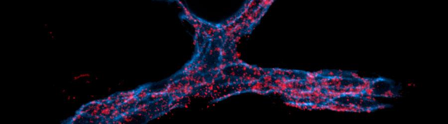 RNA de interferencia dirigido por nanopartículas