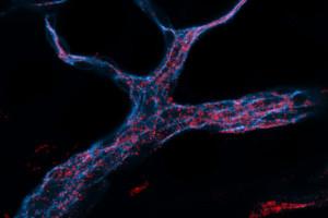 RNAi dirigido por nanopartículas